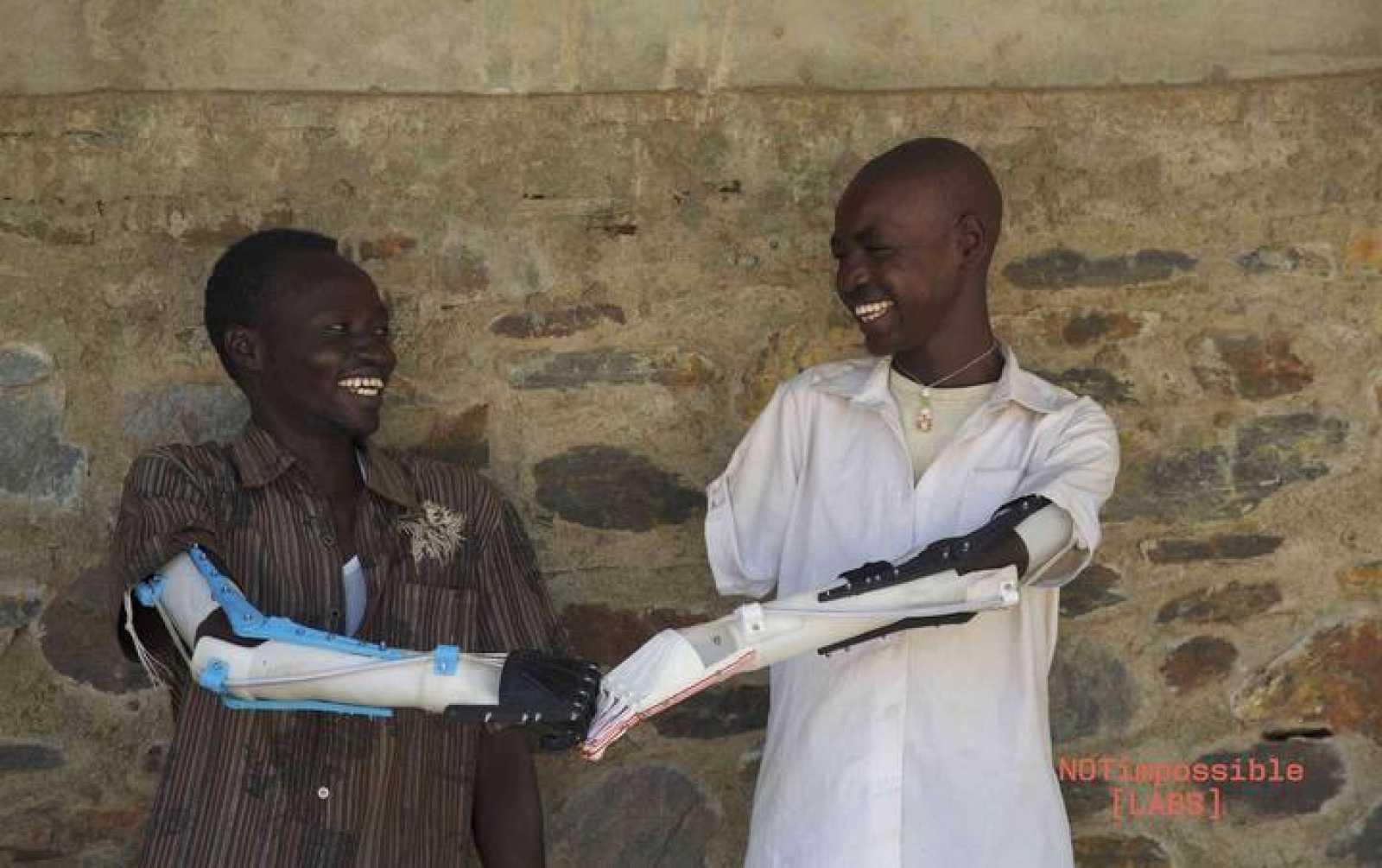 Daniel Omar y Mohammed, dos de las personas que han empezado a usar el brazo protésico.