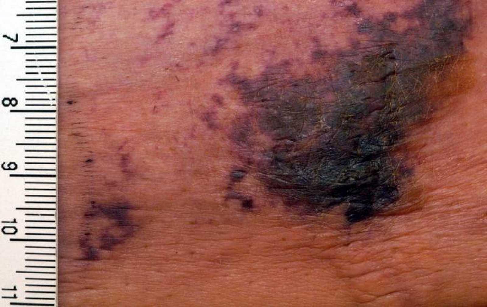 Calcifilaxis en el abdomen de un paciente con una enfermedad renal en estado terminal.