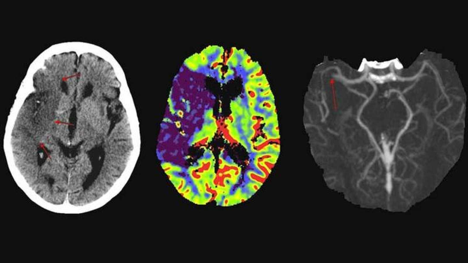 Imágenes de las consecuencias sobre el cerebro de distintos accidentes cerebrovasculares tomadas con Resonancia Magnética.