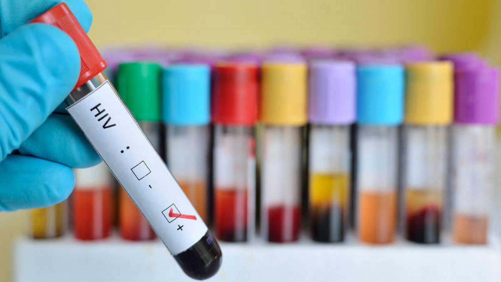 """Se están registrando """"preocupantes incrementos"""" de las infecciones por VIH"""