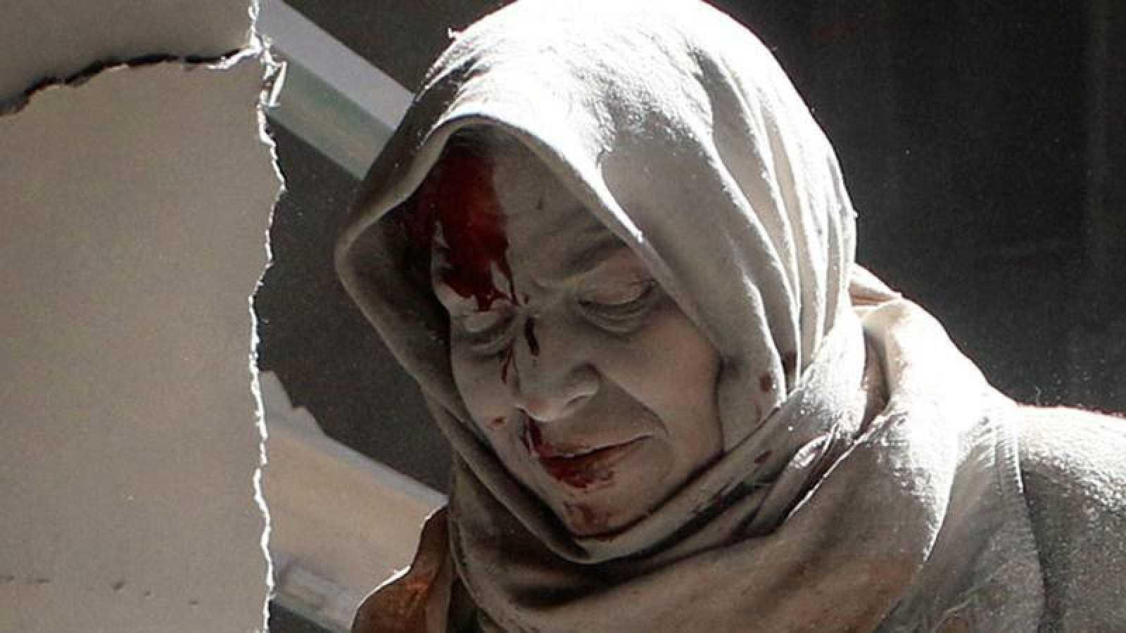 Una mujer herida tras un bombardeo aéreo en la zona oriental de Alepo en abril de 2016