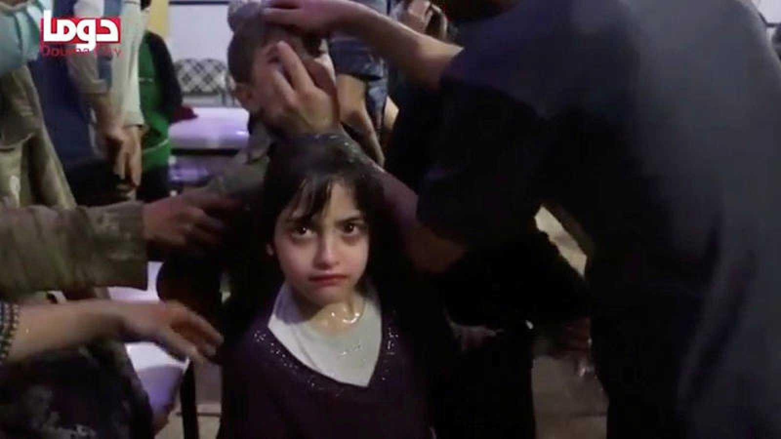 Una niña, afectada por el supuesto ataque químico sobre Duma (Siria), en una imagen facilitada por la ONG Cascos Blancos