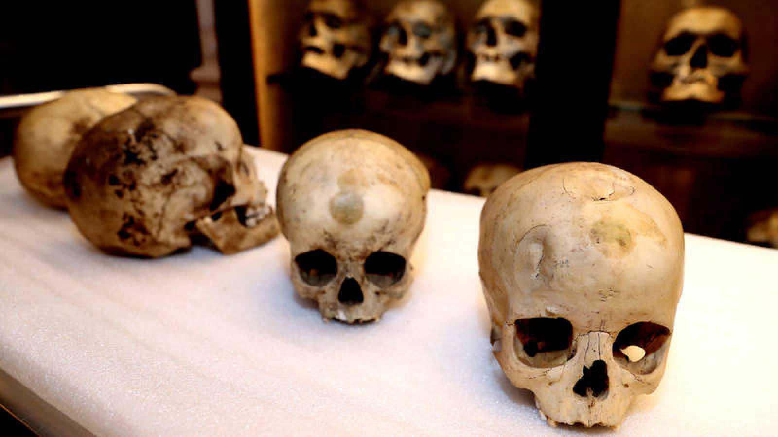 Los cráneos proceden de varios yacimientos prehispánicos de Gran Canaria datados entre los siglos VI y XV.