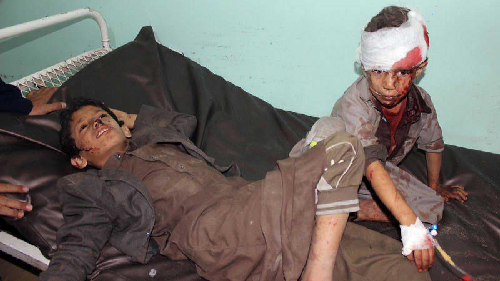 Niños yemeníes heridos en el ataque en Sadaa son atendidos por servicios sanitarios