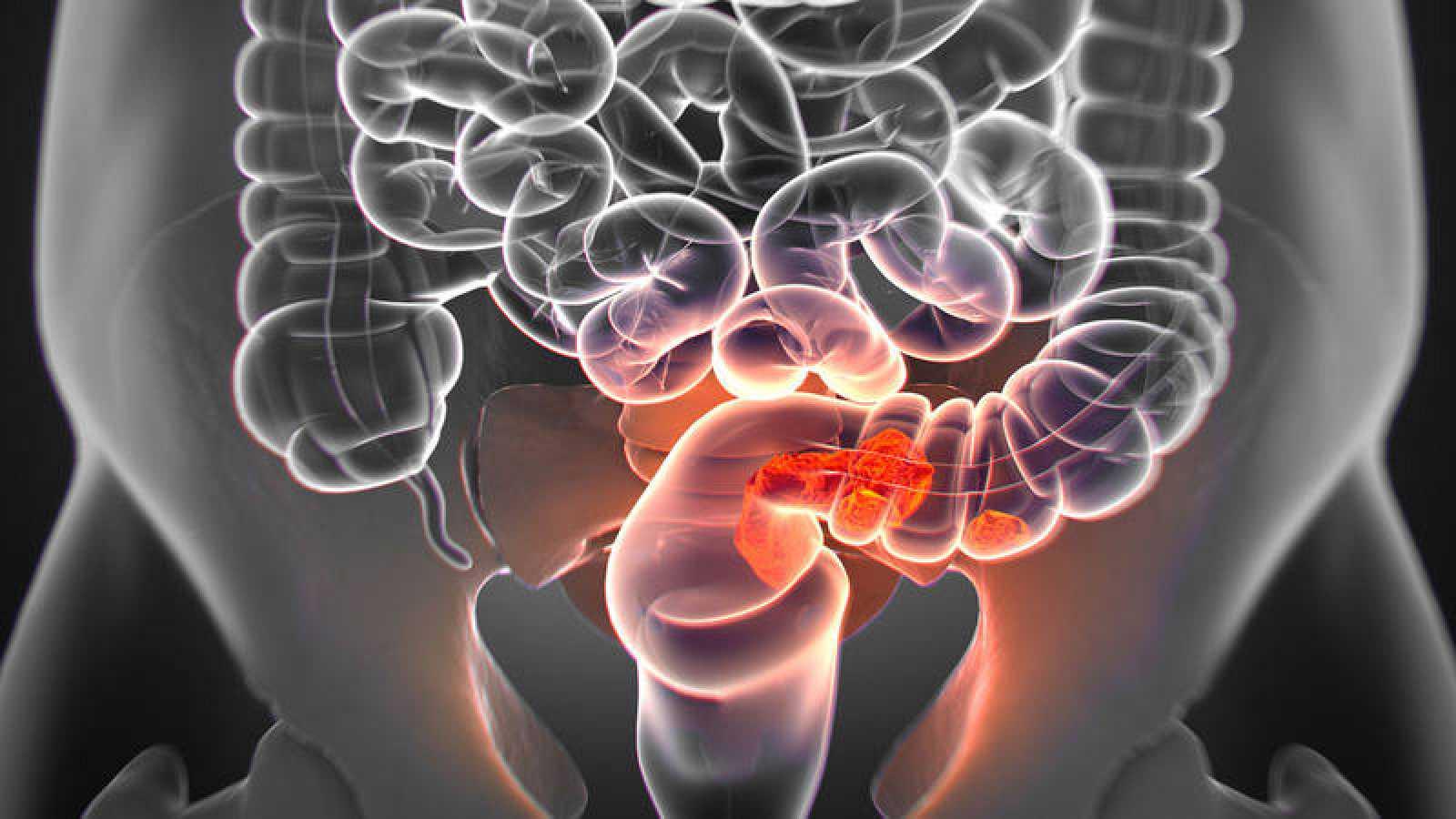 El cáncer colorrectal es el que se origina en el colon o en el recto.
