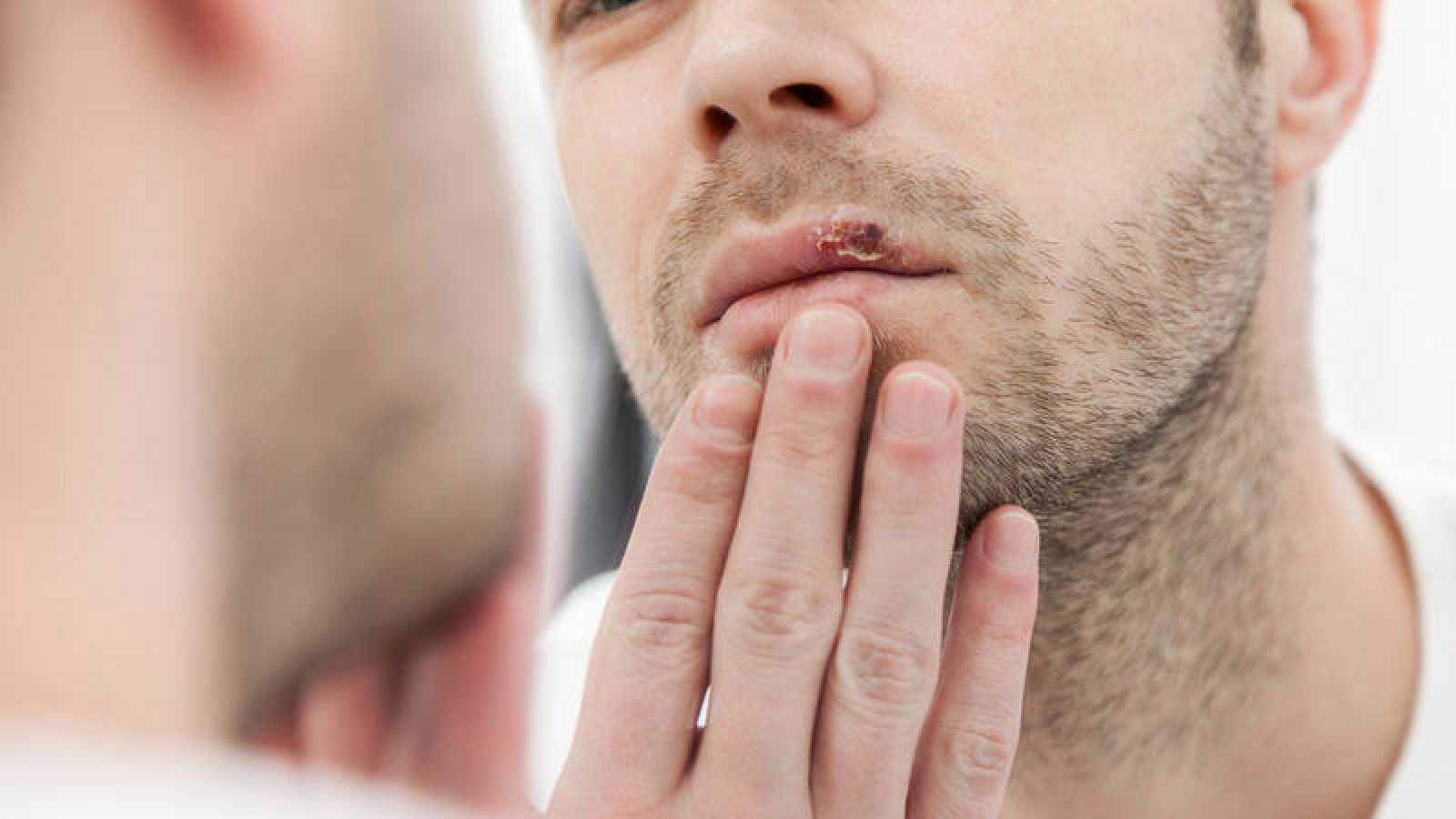 Los virus de herpes se reactivan cuando las personas afectadas están estresadas o enfermas.