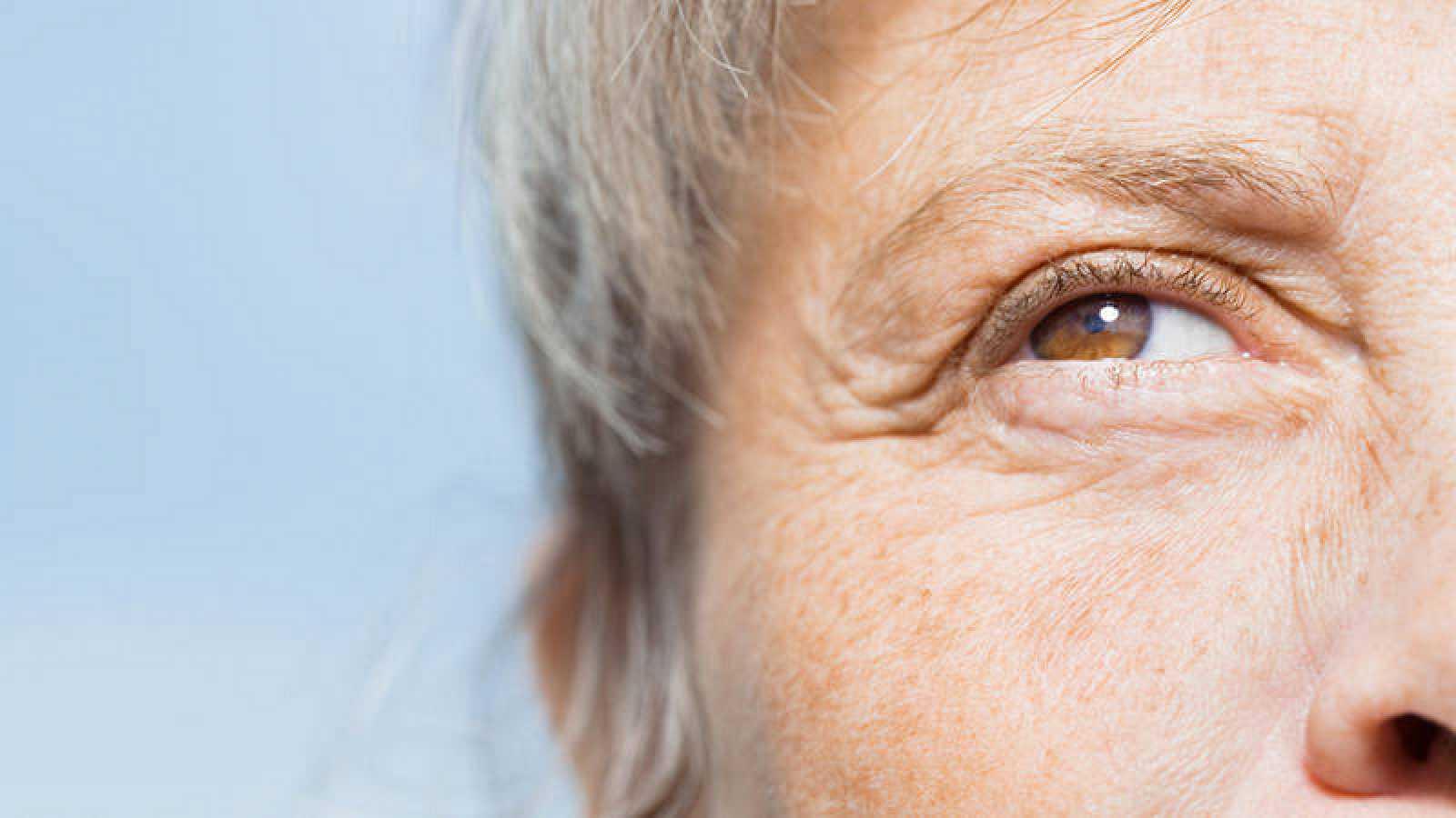 El envejecimiento de la piel, consecuencia de la pérdida de la capacidad de producir colágeno