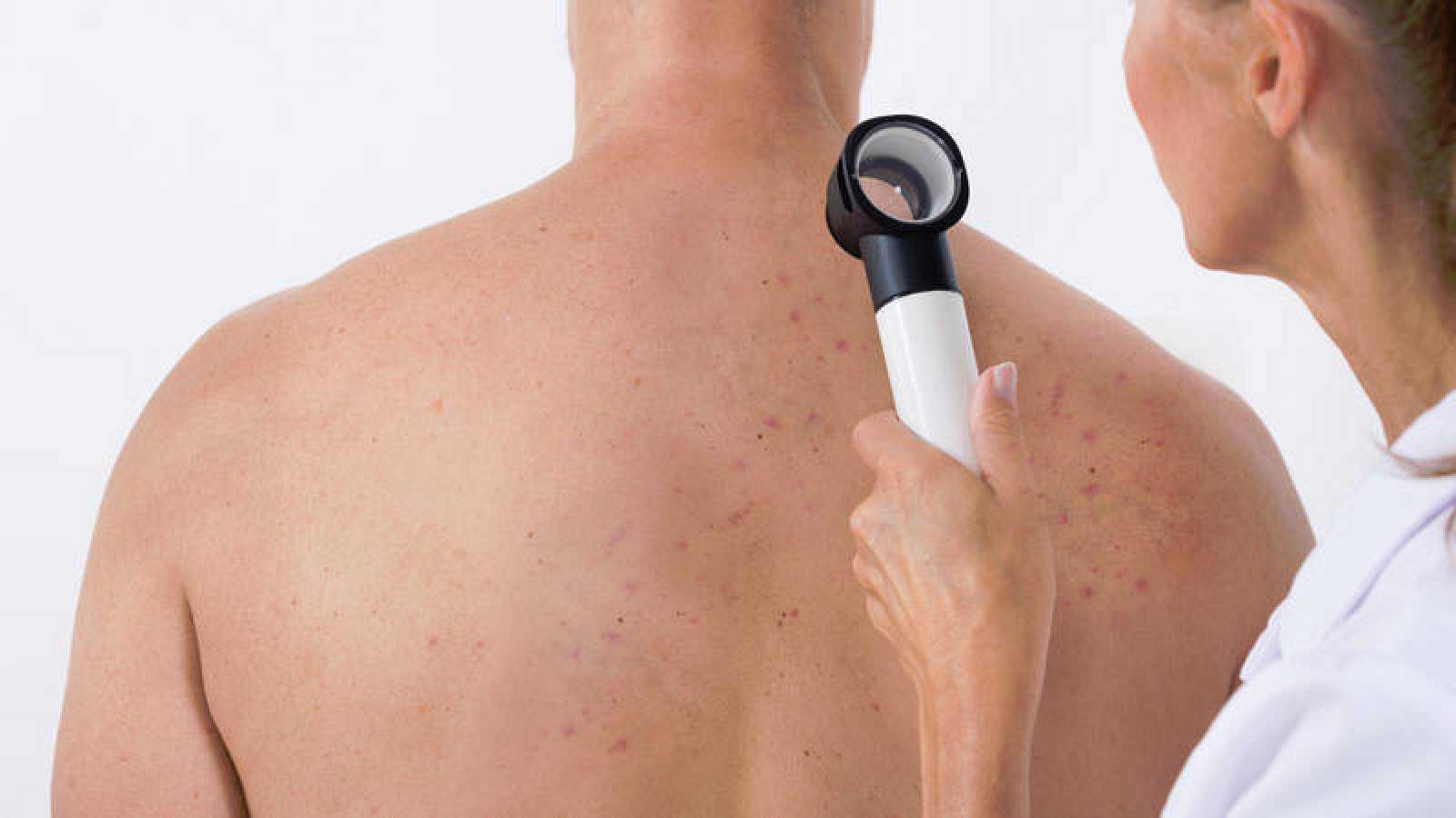 Cada año se diagnostican en España unos 5.000 casos de melanoma, el cáncer el piel con peor pronóstico.
