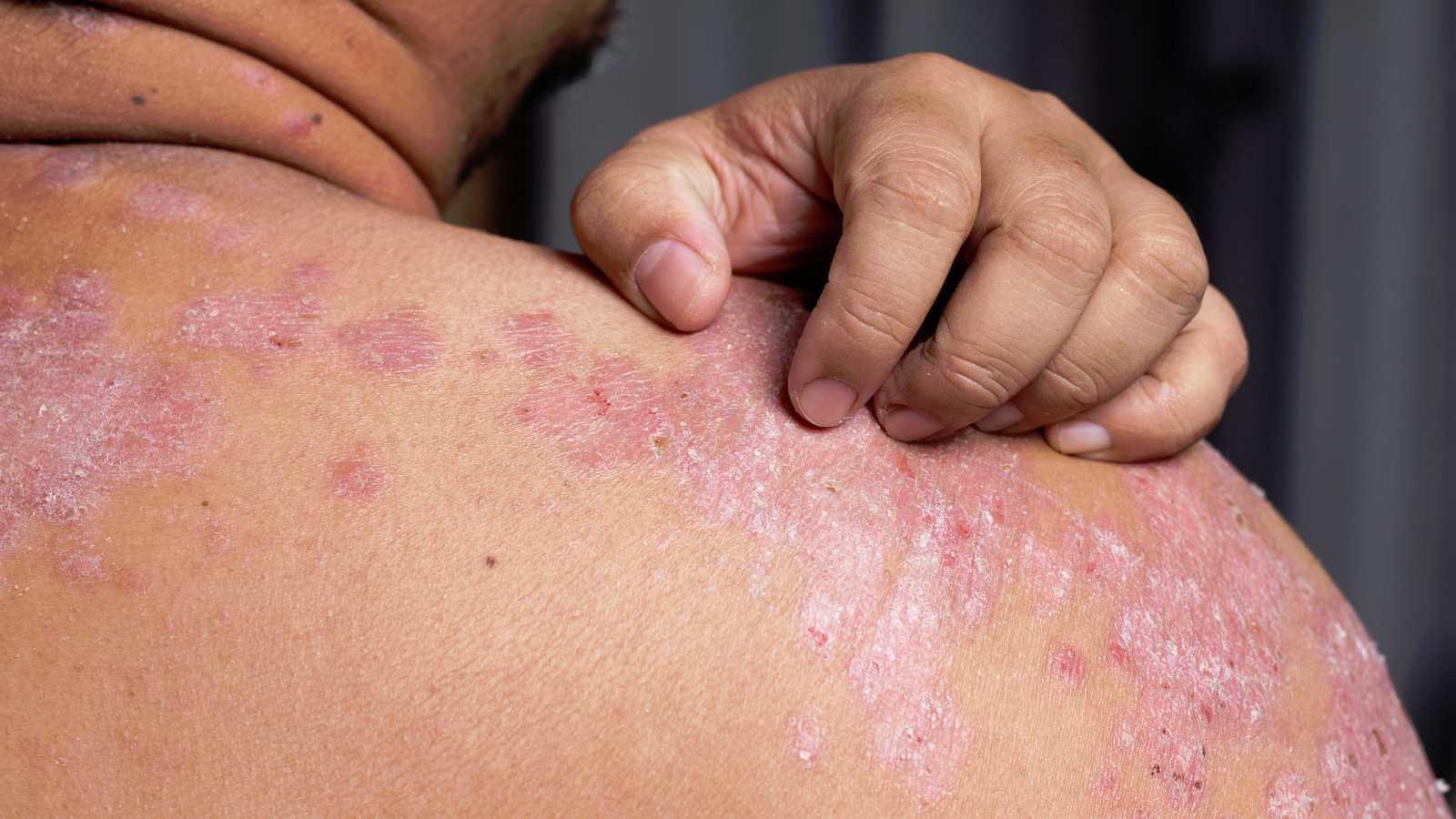 Cerca de un millón de personas en España padece psoriasis.