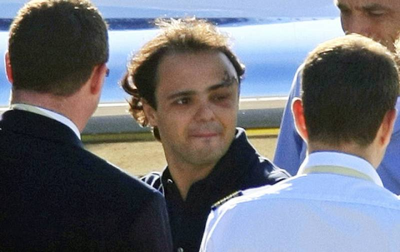 El impacto del amortiguador dejó la ceja de Massa en el estado que se ve en la imagen.