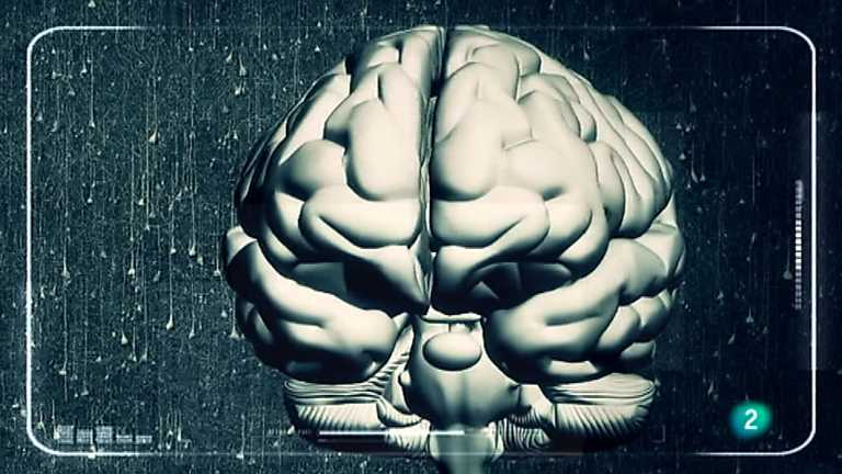 I + - Alzheimer