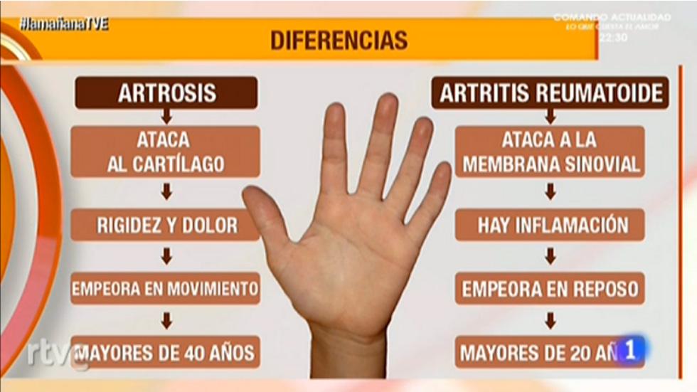 Saber vivir - Artrosis y artritis de mano