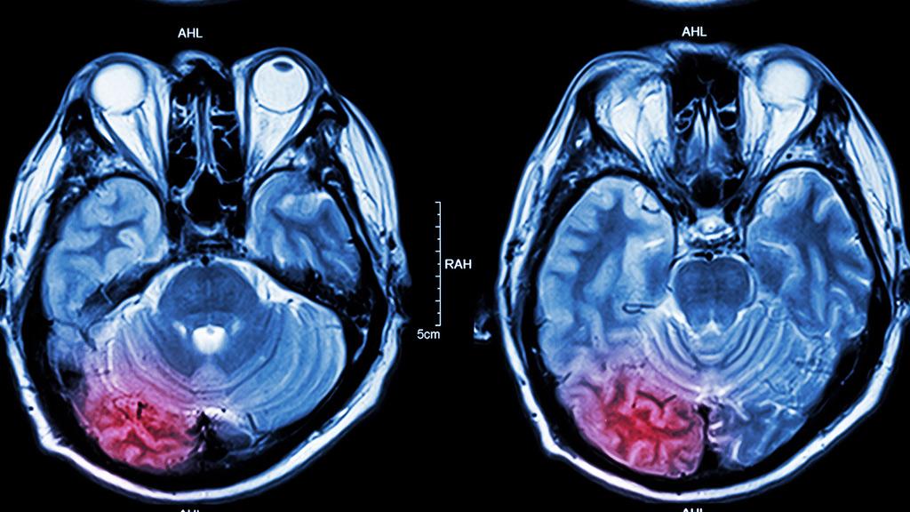 Aumenta la incidencia del ictus en pacientes jóvenes