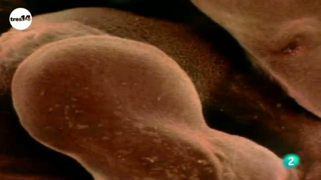 tres14 - Curiosidades científicas - Los bebés tienen más huesos que los adultos