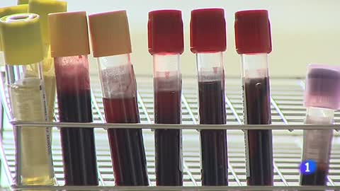 Científicos españoles podrían haber eliminado el VIH de seis pacientes con trasplantes de células madre