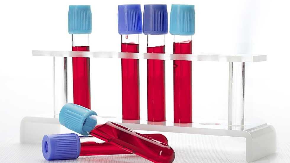 Saber vivir -  Coagulación de la sangre