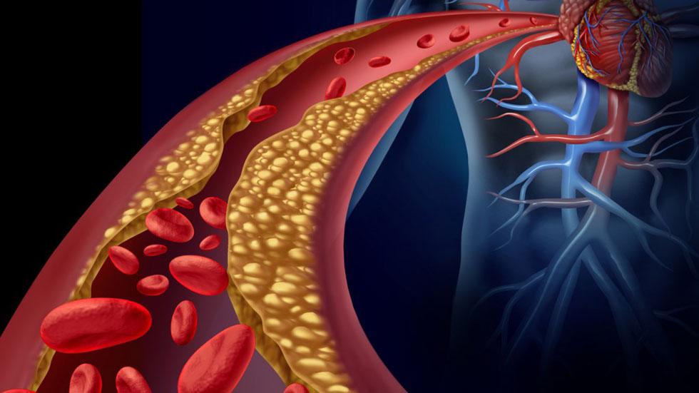 Saber Vivir - Colesterol en verano