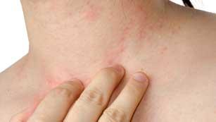 Saber vivir - Cómo cuidar la piel delicada