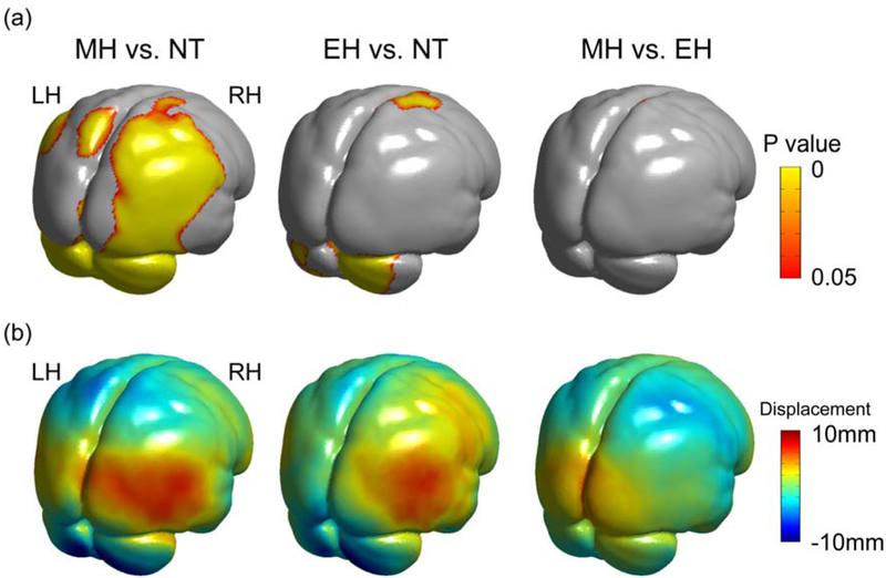 Comparación de la morfología de los cerebros de los neandertales (NT), los humanos modernos (MH) y los primeros H. sapiens (EH)