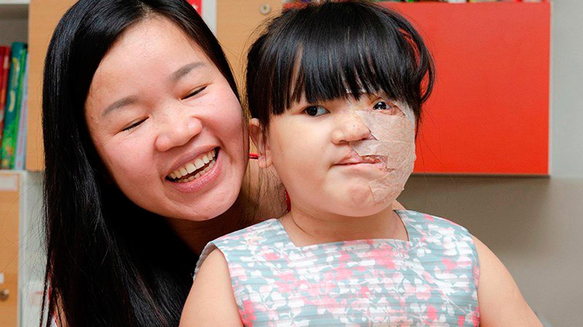 Un equipo del Gregorio Marañón devuelve el rostro a una niña vietnamita que sufría un tumor gigante