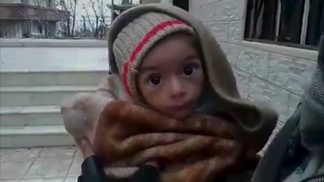 Fotograma con la imagen de un bebe desnutrido en la ciudad siria de Madaya