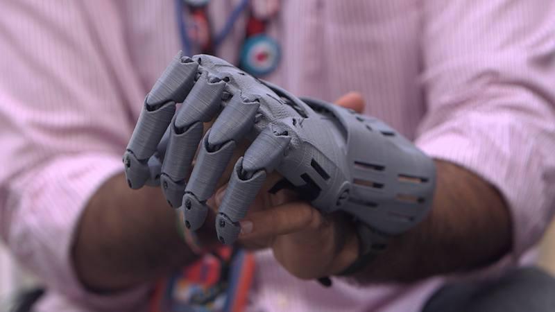 HACKERS  prótesis impresa en 3D