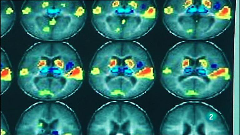 Fábrica de ideas-Innova: Instituto de Neurociencias