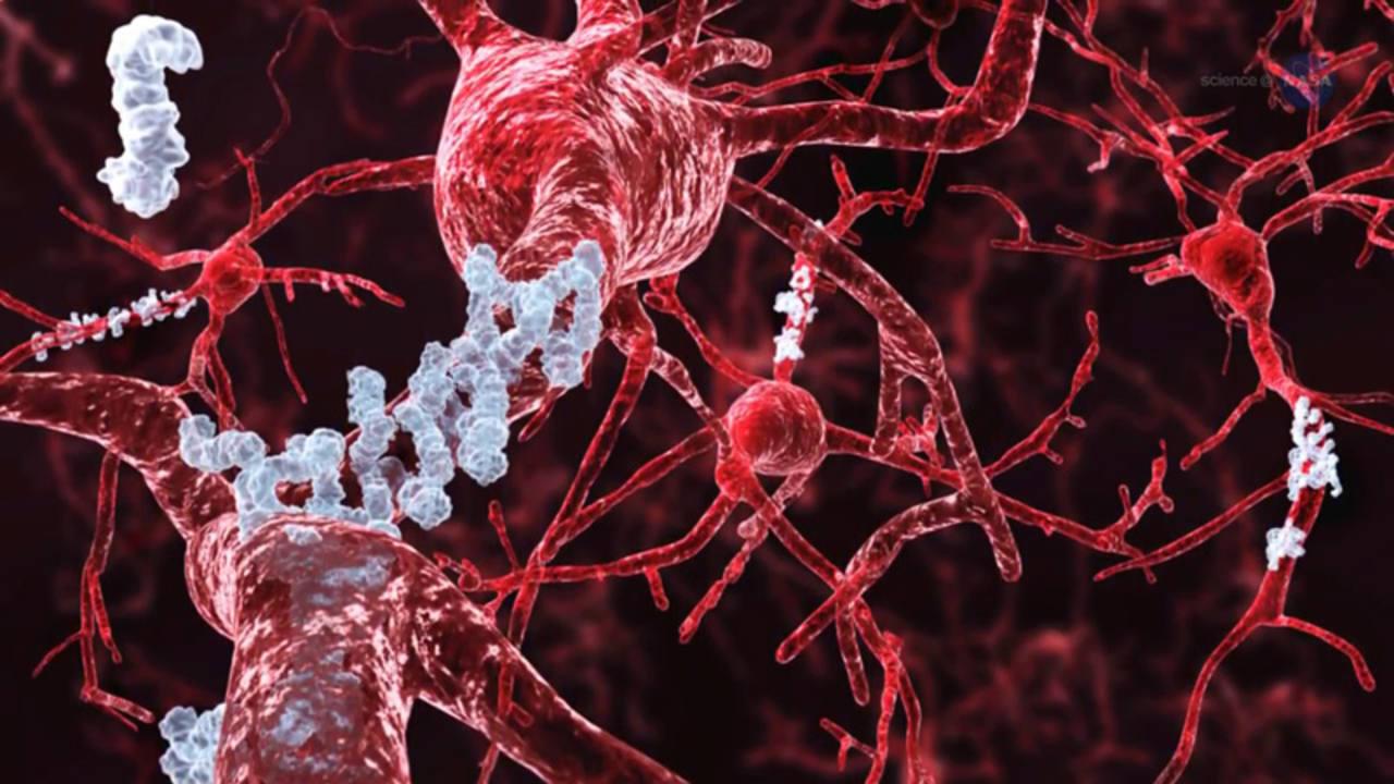 Los investigadores creen que la enfermedad de Alzheimer avanza cuando ciertas proteínas se juntan en el cerebro y forman largas fibras que se acumulan y, finalmente, estrangulan a las neuronas del cerebro