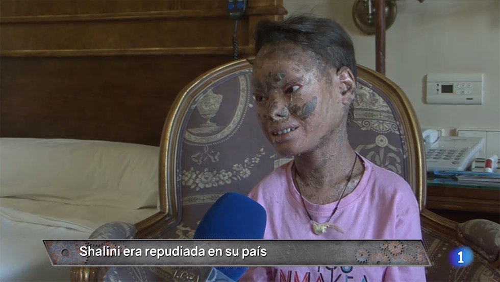 """No os perdáis el caso de Shalini, la llamada """"niña serpiente"""". La entrevistamos en EXCLUSIVA y lo debatimos con los doctores que han tratado a la joven"""