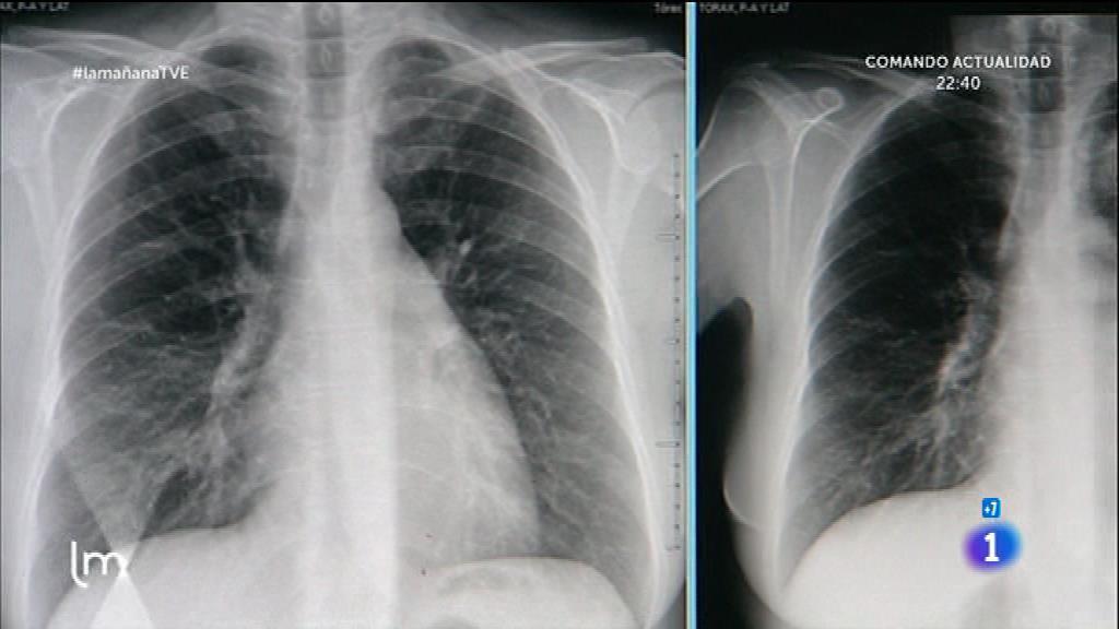 Saber Vivir - Problemas respiratorios