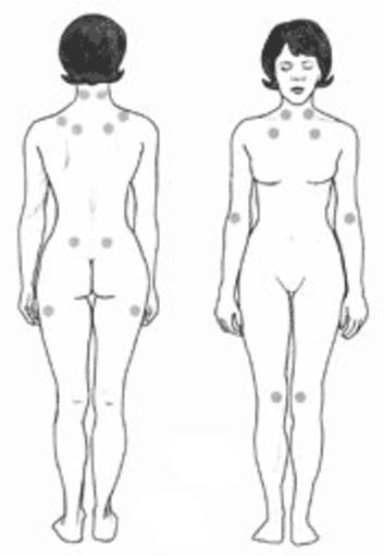 http://www.rtve.es/imagenes/tender-points-fibromyalgia/1273832251925.jpg