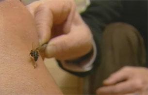 Ver vídeo  'El veneno de las abejas tiene propiedades curativas'