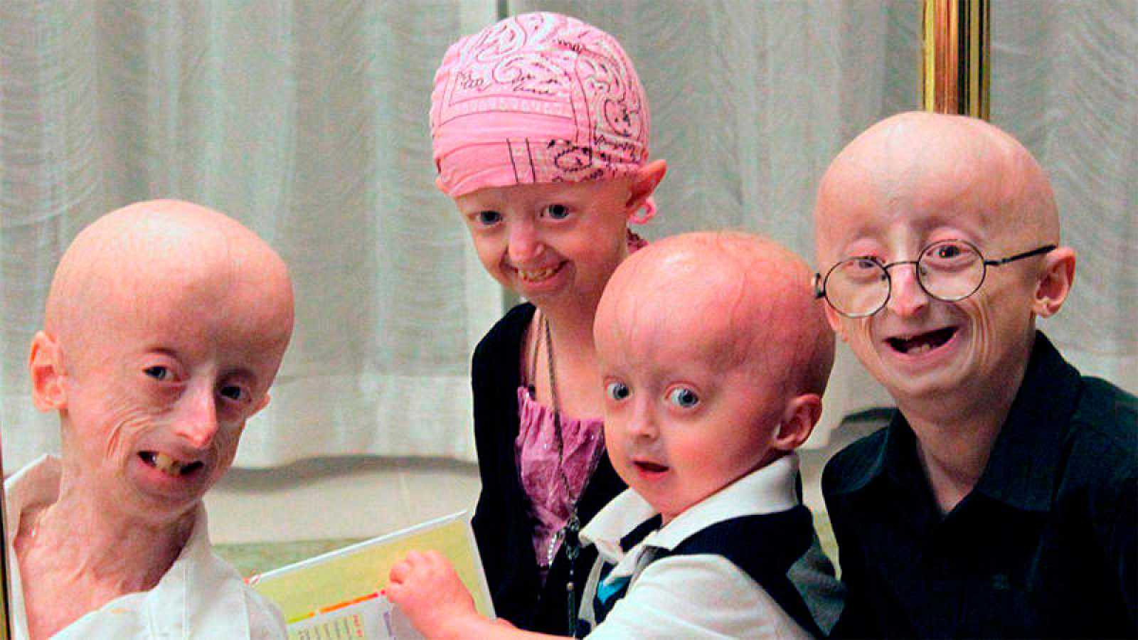 Image result for progeria