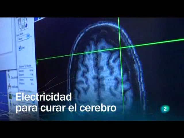 Resultado de imagen para cerebro electricidad
