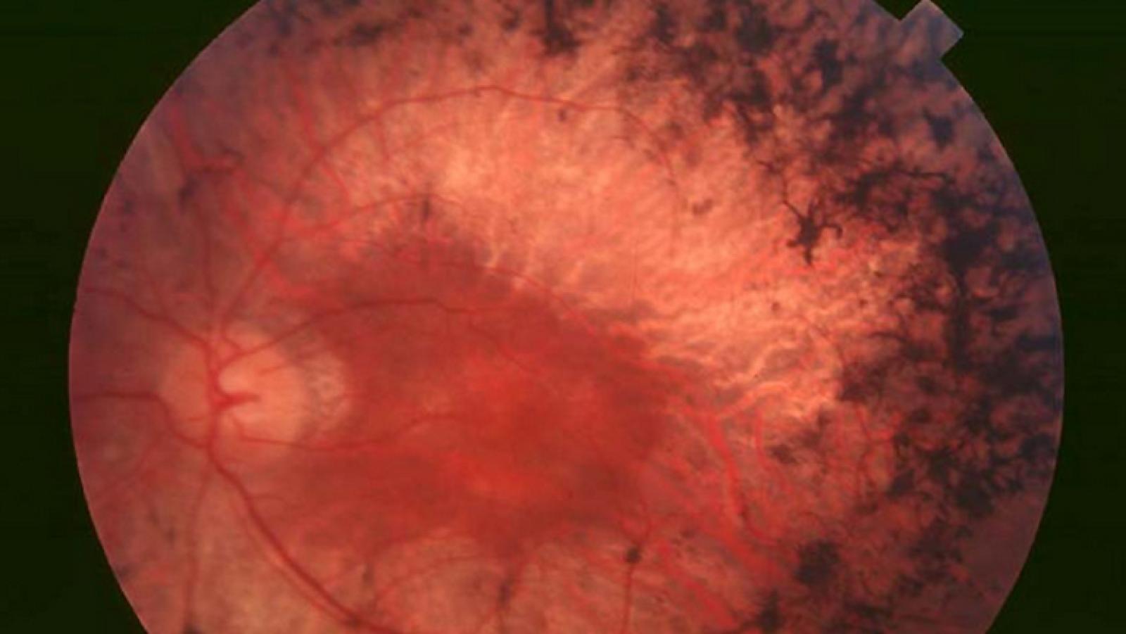 A hombros de gigantes - La retinosis pigmentaria, una enfermedad hereditaria que puede producir ceguera - 01/12/14 - Escuchar ahora
