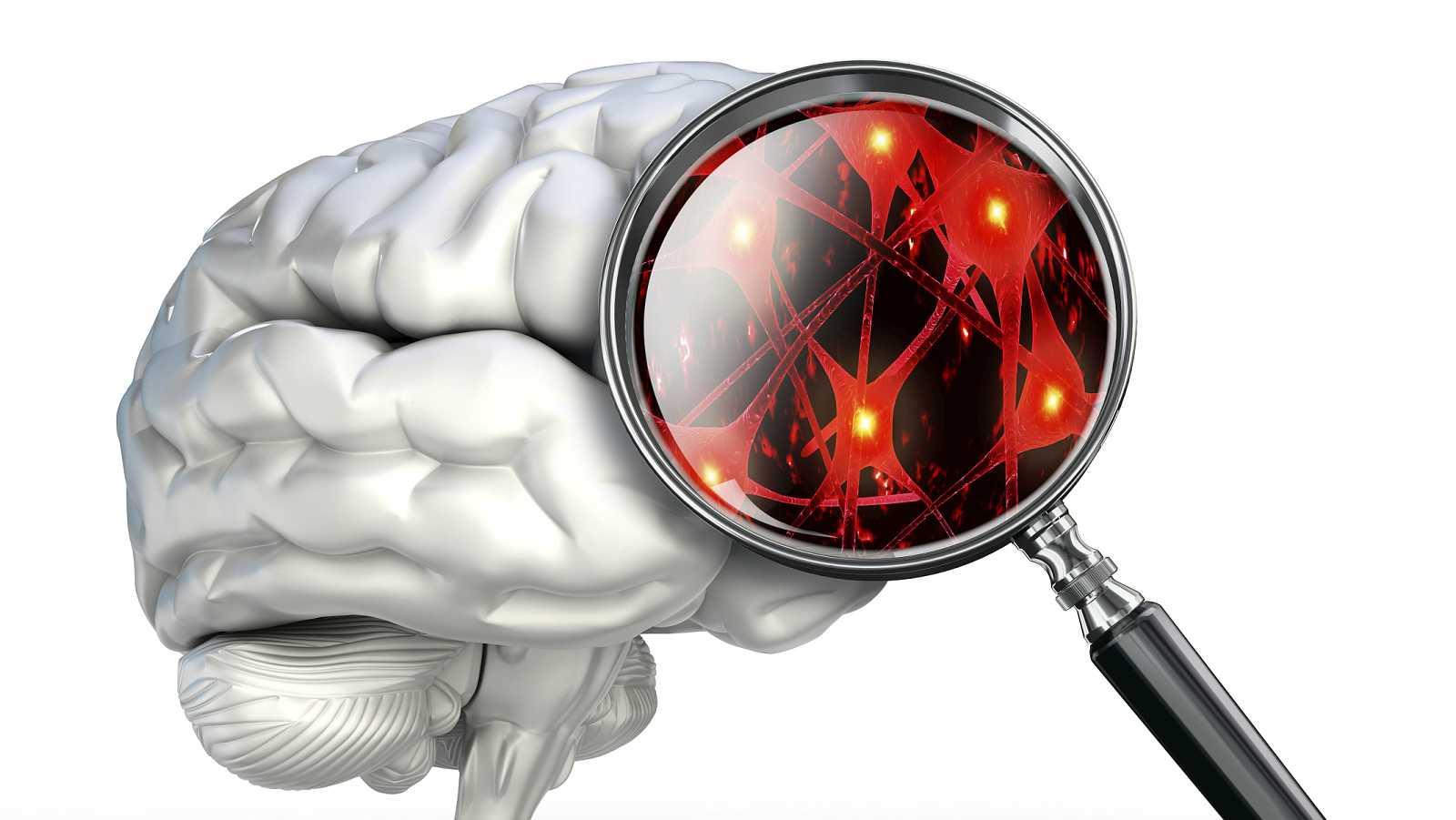 InquietaMENTE - Cerebro espiritual - 08/09/15 - Escuchar ahora