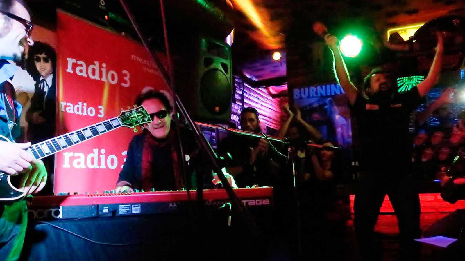 Celebramos 40 años de Burning en Radio 3 - escuchar ahora