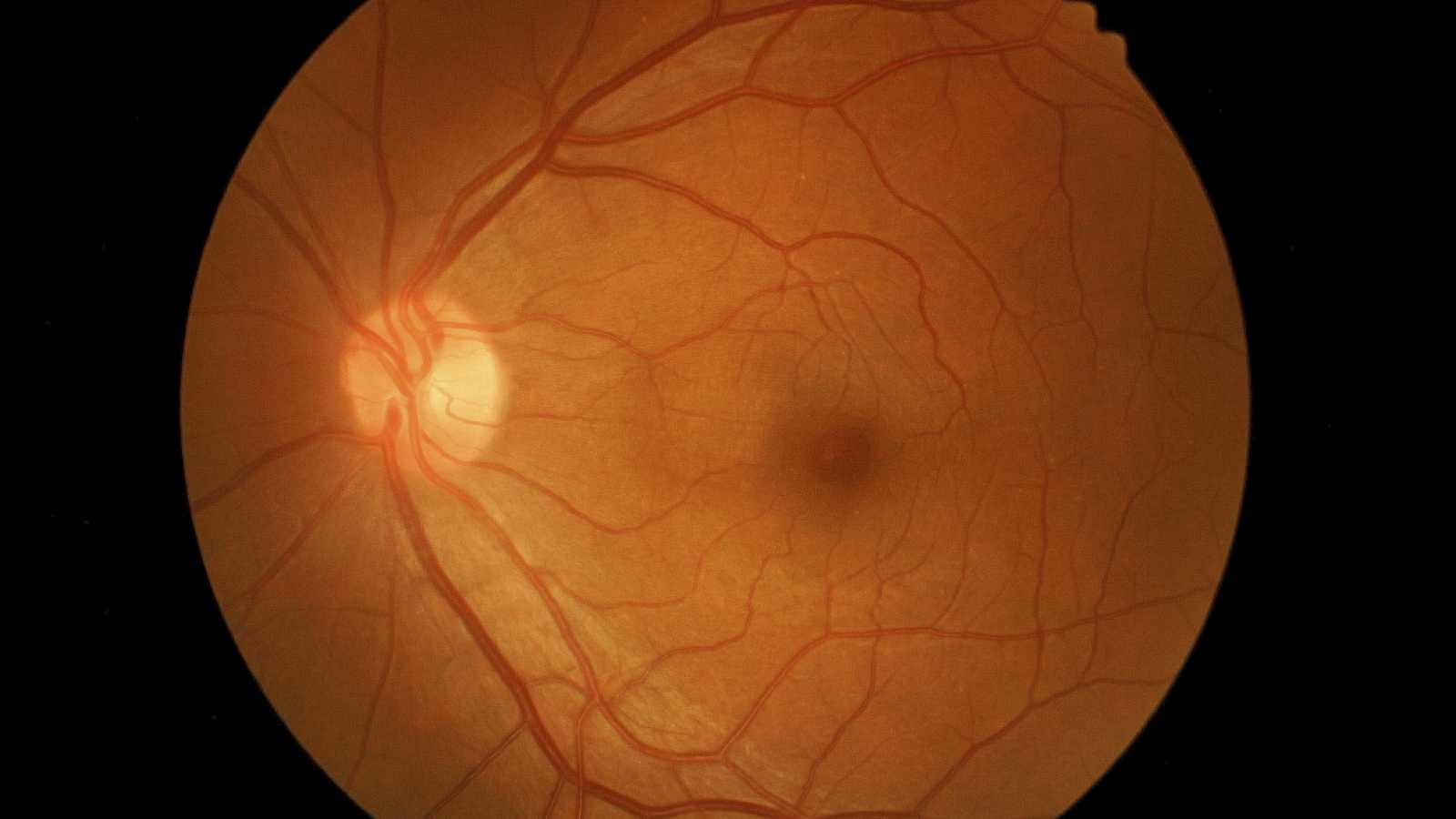 Entre probetas - Distrofias hereditarias de la retina - 04/05/16 - Escuchar ahora