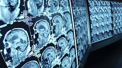 Entre probetas - Rehabilitación en neuropatologías: ¿posible? - Escuchar ahora