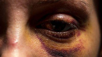 Tolerancia cero - Hambre por una vida sin violencia - 23/02/17 - Escuchar ahora