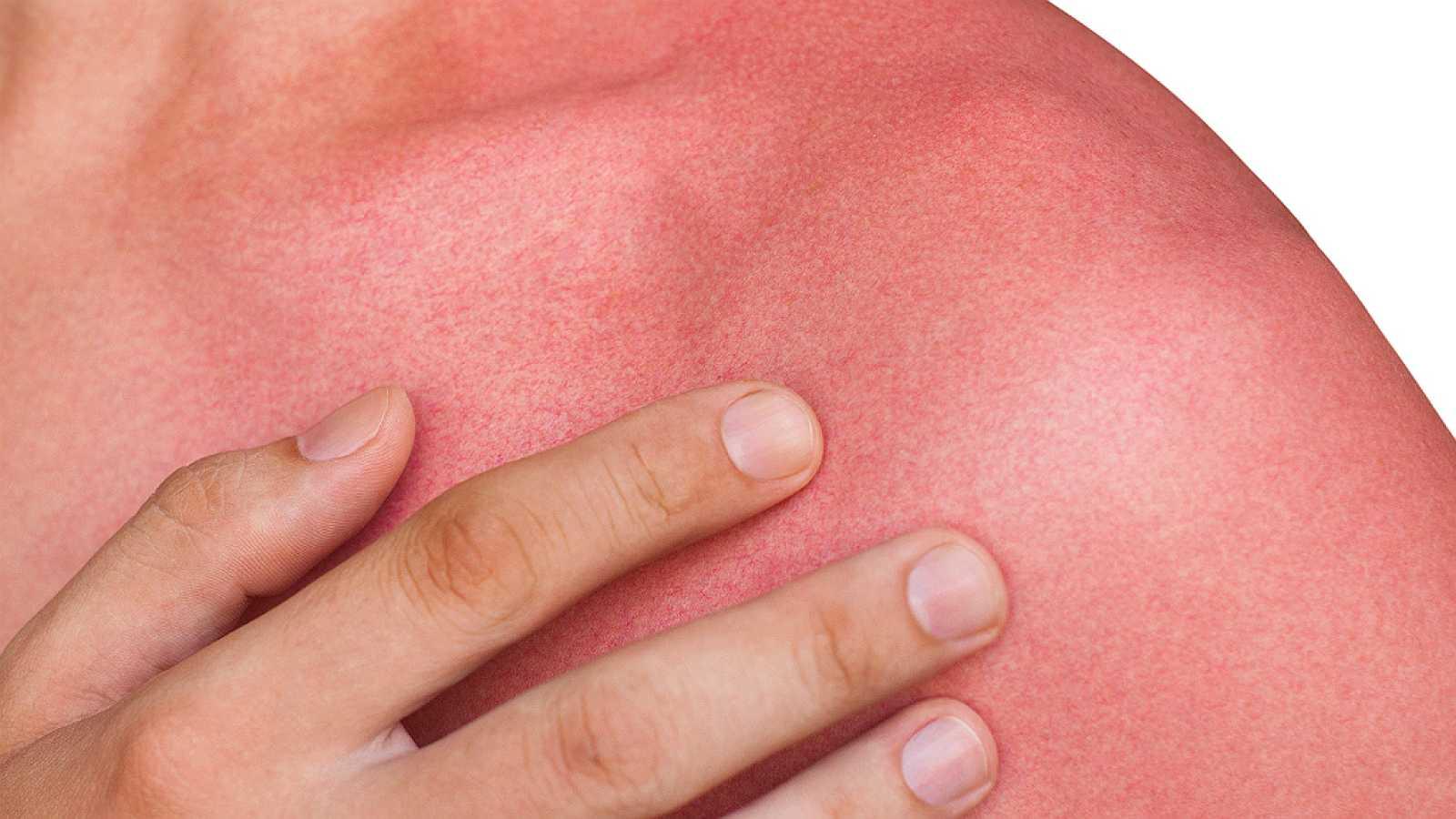 España vuelta y vuelta - Los cuidados de la piel en verano - 22/05/18 - Escuchar ahora