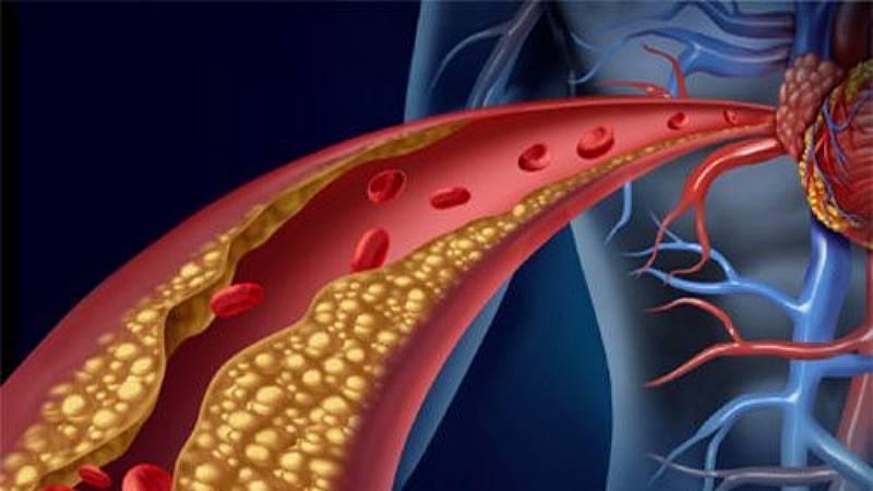A su salud - El colesterol, un regalo de reyes envenenado - 15/01/20 - Escuchar ahora