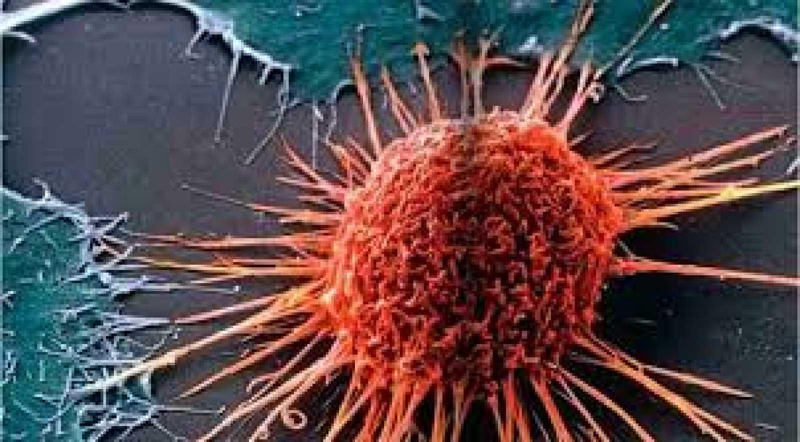 Entrevista investigación cáncer - 27/10/20 - Escuchar ahora