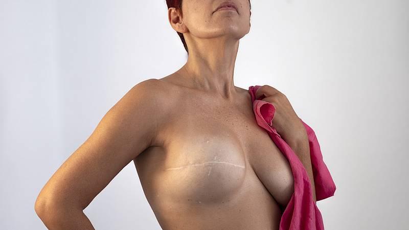 Marca España - Cirugía plástica al servicio de la salud - 03/02/21 - escuchar ahora