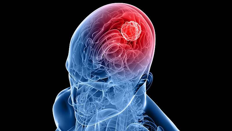 Células metastásicas cerebrales; predicción de erupciones volcánicas; la ciencia de la fecundación in vitro; isótopos del hidrógeno; elegir carrera; Adelina Gutiérrez; el puzle de Ada Lovelace - Escuchar ahora