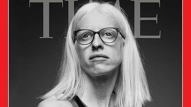 Susana Rodríguez, atleta paralímpica y portada de Time