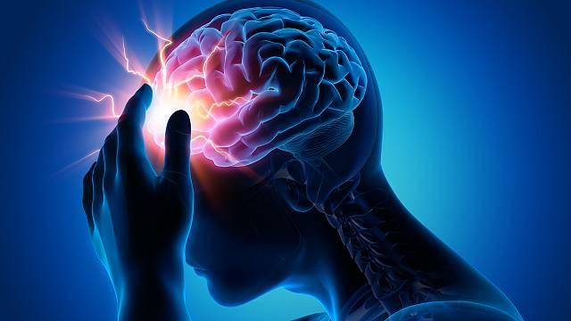 Cardiólogos utilizan dispositivo contra lesiones cerebrales