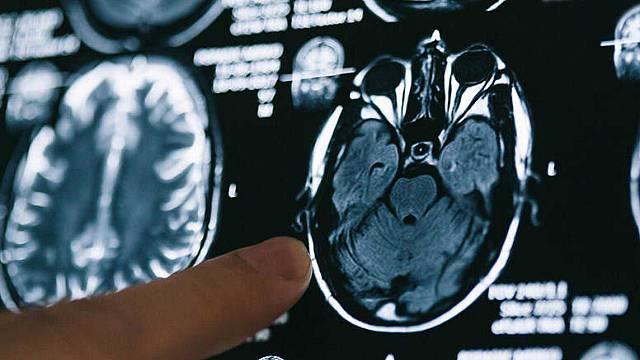 Médico de guardia: Todos los secretos que el cerebro esconde
