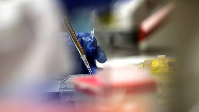 El CSIC aplaza los ensayos humanos de la vacuna española