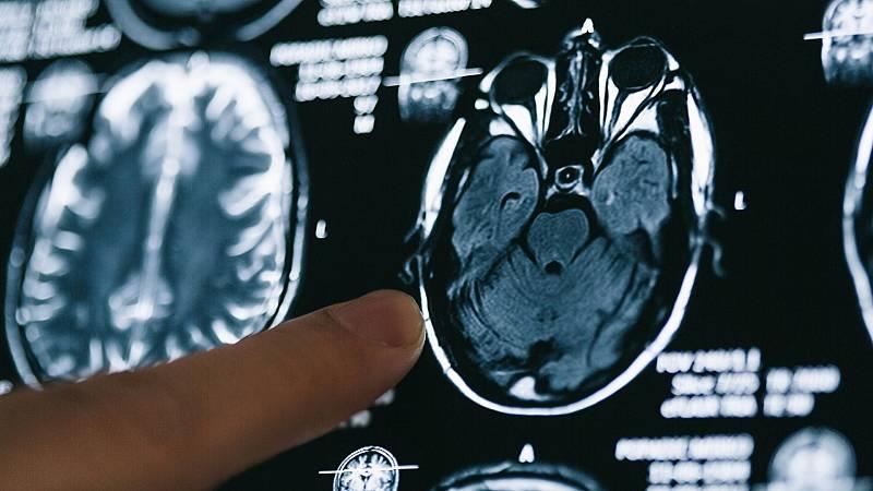 Las mañanas de RNE con Pepa Fernández - ¿Quién fue la primera persona en documentar el alzheímer? - Escuchar ahora